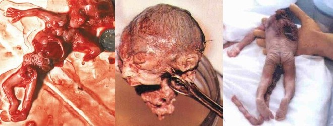 Left: Ten weeks aborted fetus. All major structures, including hands, feet,